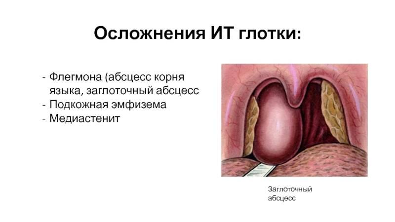Абсцесс, гнойное воспаление языка