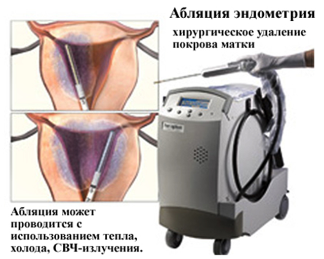 Виды коагуляций шейки матки: показания и противопоказания, реабилитация