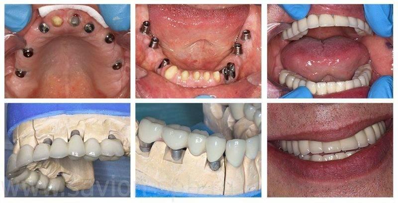 Боль челюсти после имплантации – что делать если болит имплант зуба