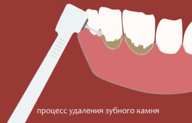 Процедура лазерного удаления зубного камня