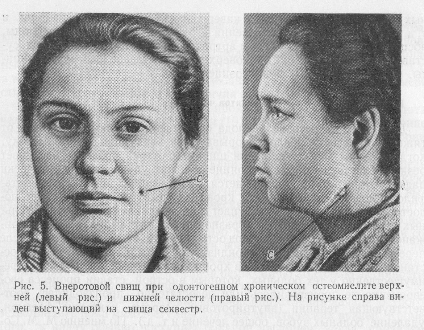Что такое остеомиелит челюсти, симптомы и лечение