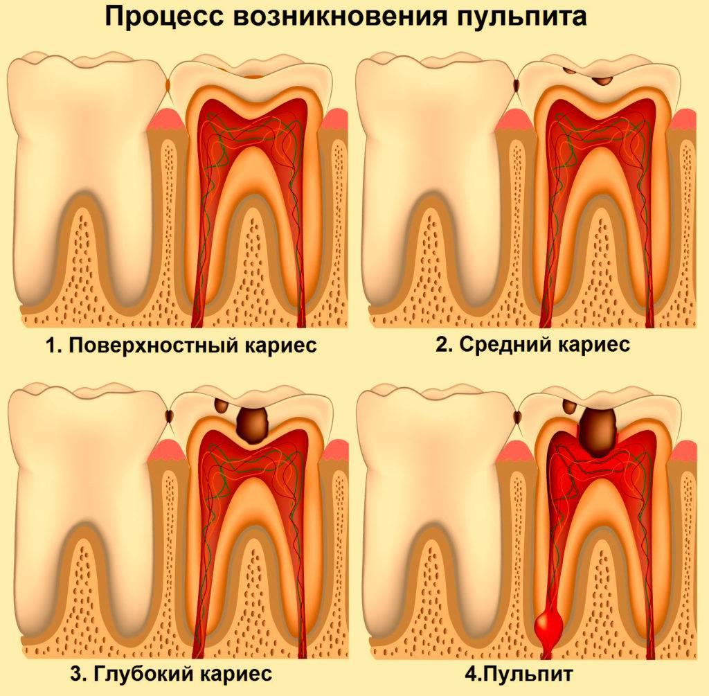 Методики и этапы лечения пульпита
