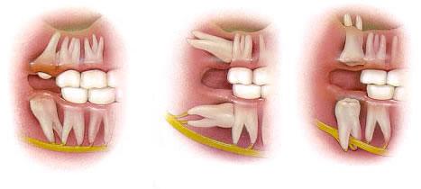 Болит голова после удаления зуба