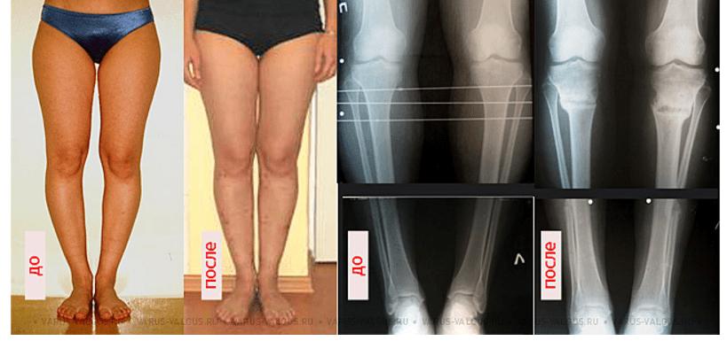Коррекция кривых ног