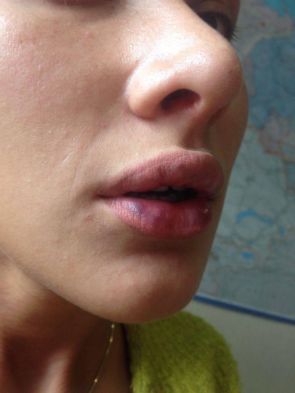 Пигментные пятна на губах: особенности образования и методы борьбы