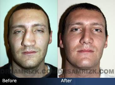 Перелом носа без смещения