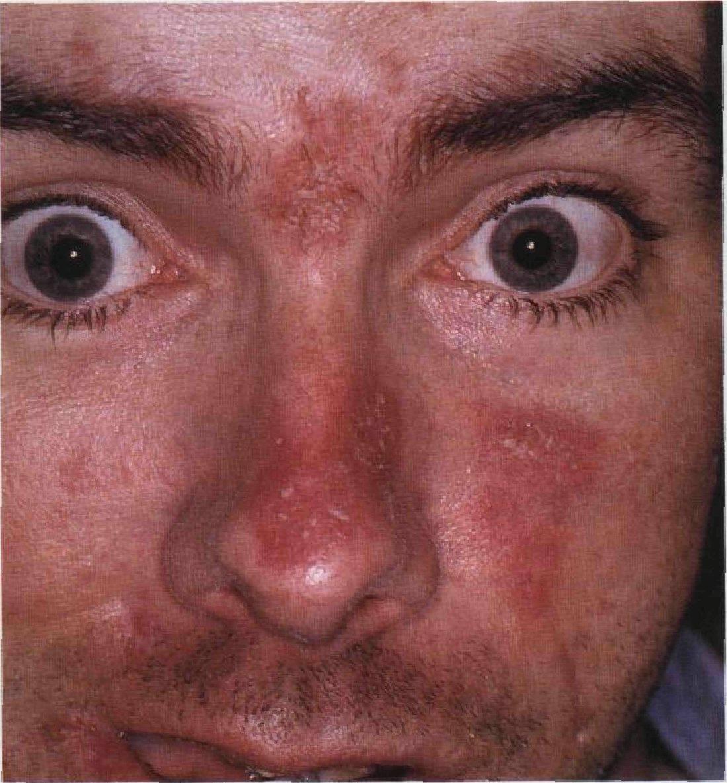 Зуд, шелушение и покраснение бровей: причины, лечение. почему краснеют, чешутся брови и выпадают, как их лечить?