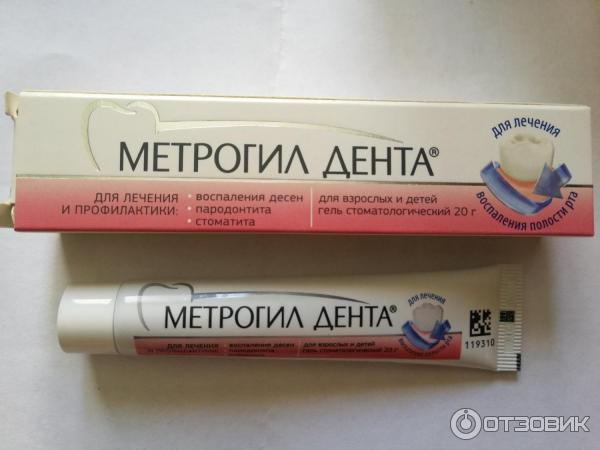 Воспаление десен