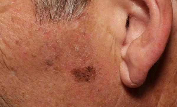 Причины появления бугорков на лице и как от них избавиться