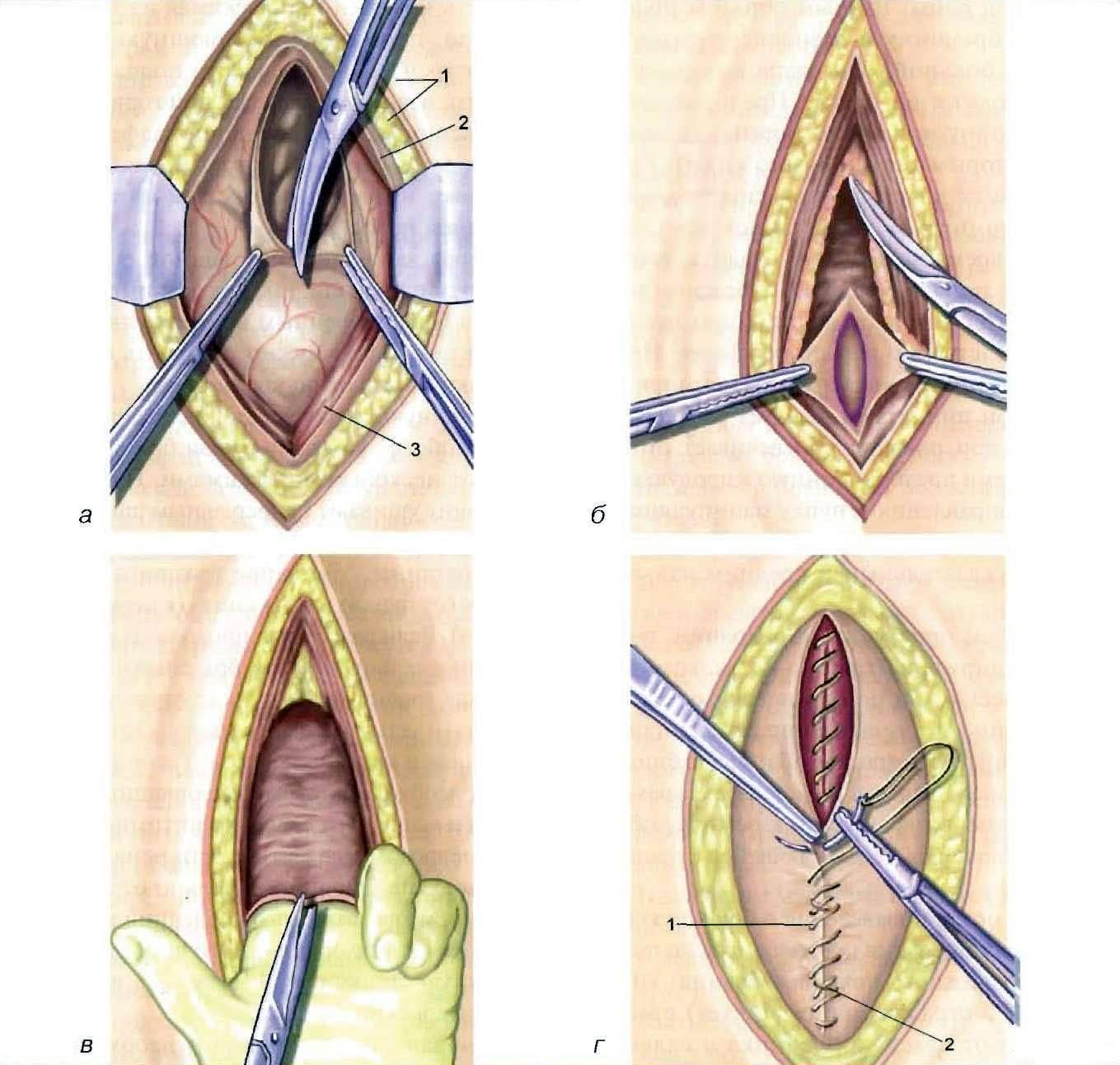Интимная пластика после родов: популярные операции