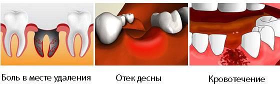 Обязательно ли накладывать швы после удаления зуба мудрости