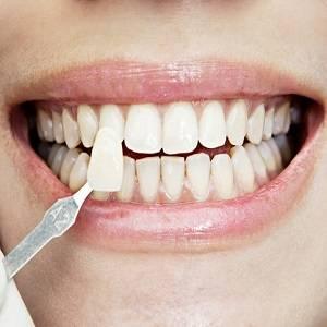 Можно ли отбеливать зубы с пломбами