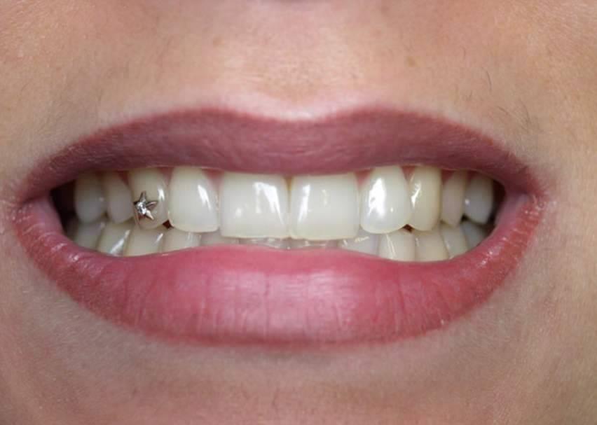 Виды и установка скайсов на зубы: декорирование бриллиантом и стразами, пирсинг в стоматологии