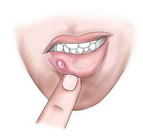 Всё о причинах возникновения и лечении волдырей на внутренней стороне губ