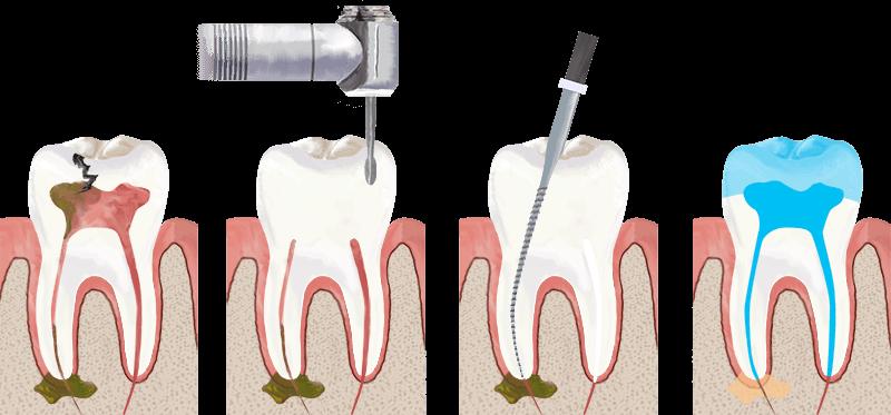 Можноли чистить зубы на второй день после удаления зуба