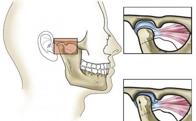 Причины болей челюстного сустава и методы его лечения