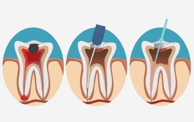 Сколько каналов в 7 нижнем зубе