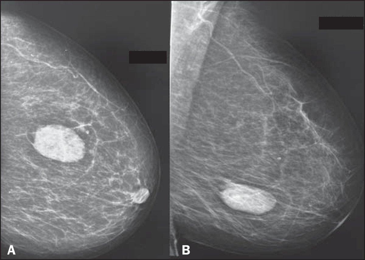 Фиброзно-кистозная мастопатия (фкм) молочной железы: описание, симптомы и лечение