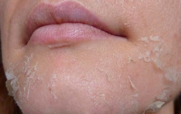 Сухая кожа лица: как правильно ухаживать за ней?