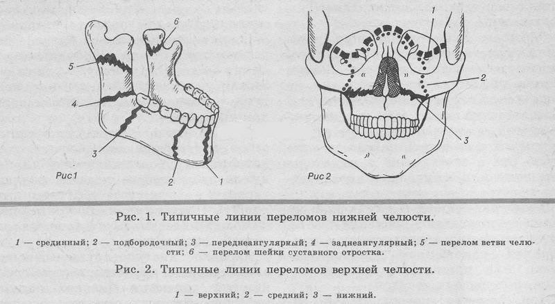 Перелом верхней челюсти: классификация по ле фор 1, 2, 3, мкб-10, симптомы, лечение
