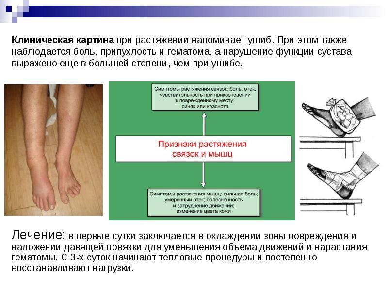 Осумкованная гематома: причины возникновения и методы лечения