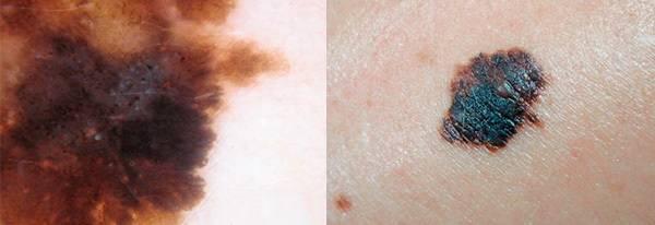 Дерматоскопия кожи и родинок