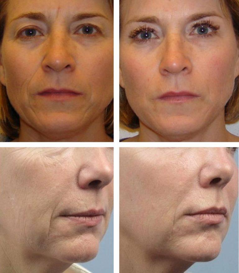 Отзывы о безинъекционной мезотерапии для лица с фото до и после