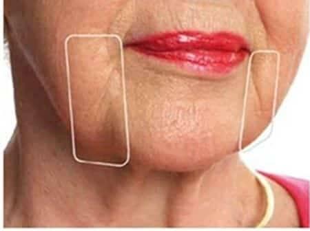 Как убрать брыли, подтянуть скулы и похудеть в щеках — упражнения и массаж в домашних условиях