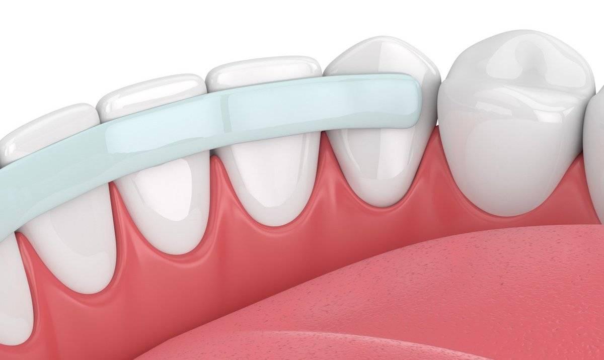 Шинирование подвижных зубов — что это такое или как сохранить шатающиеся зубы