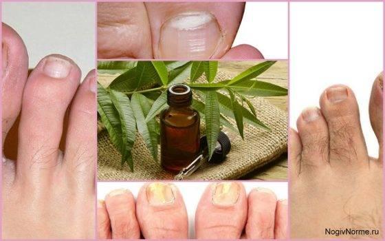 Заживляющее масло чайного дерева — полная инструкция (свойства, способы и особенности применения, состав эфира, отзывы)
