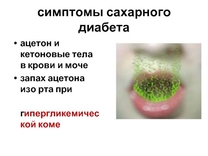 У ребенка запах изо рта ацетоном: основные причины, что делать