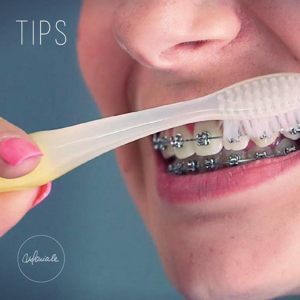 Что сначала необходимо сделать: отбелить зубы или выровнять их с помощью брекетов?