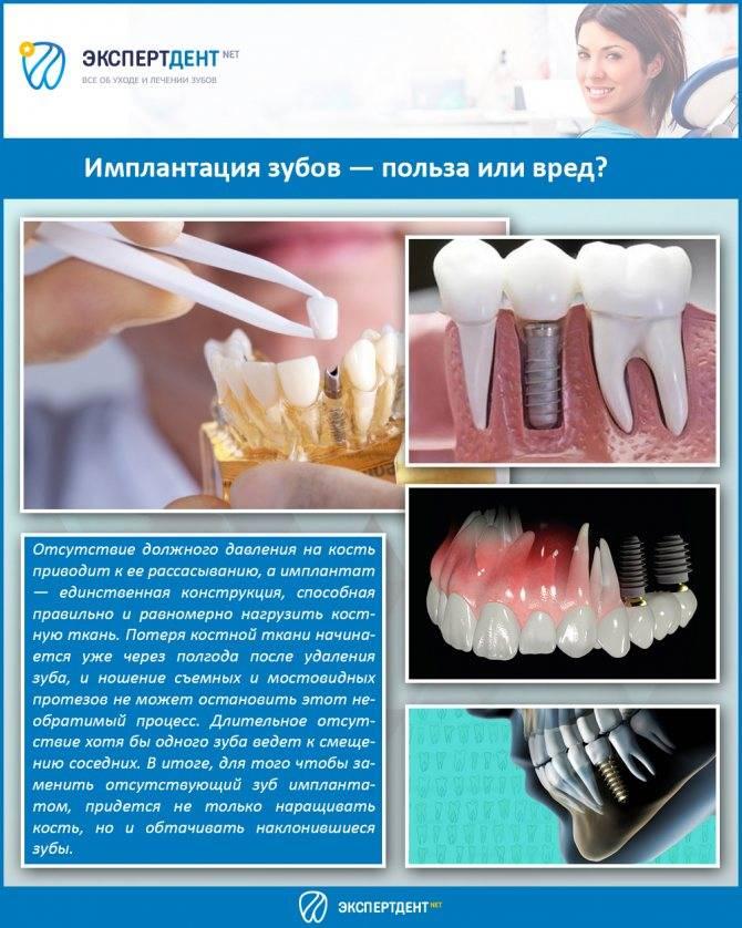 Установка имплантов на верхнюю челюсть процедура