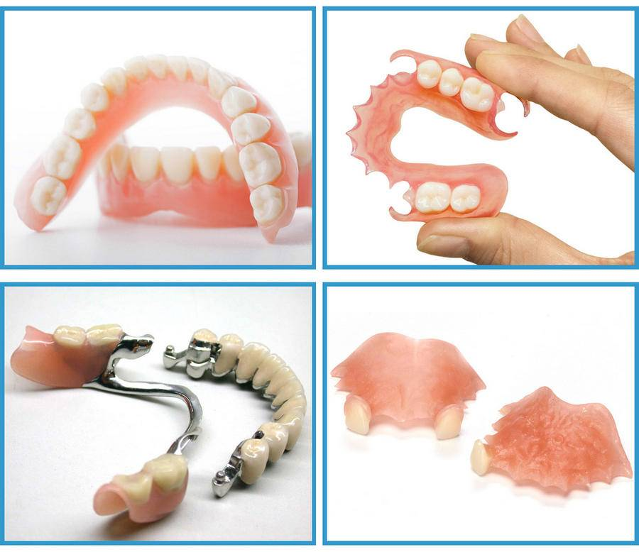 Какие бывают зубные протезы и как их выбирать