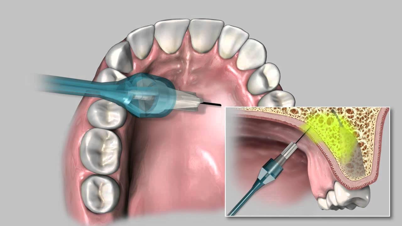 Как снять боль после удаления зуба в домашних условиях