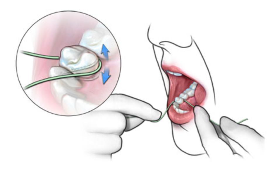 Когда чистить зубной нитью - до или после чистки зубов щеткой? как правильно это делать?