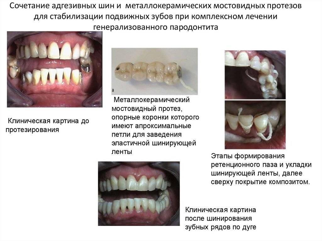 Коронка на зуб — технология изготовления, виды и результаты протезирования