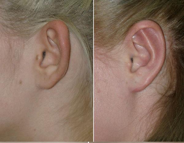 Микротия ушной раковины: операция, фото до и после, причины