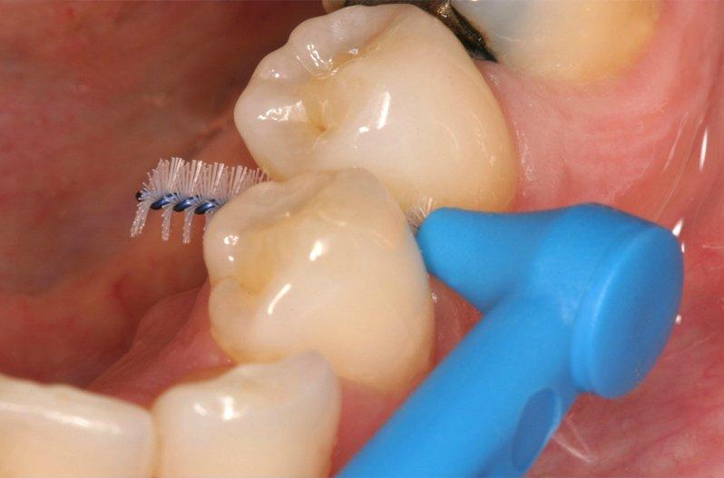Отчего зависят сроки службы зубных имплантов