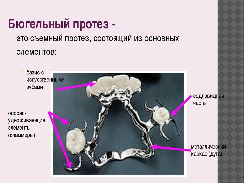 Для чего используют кламмеры в зубном протезировании?