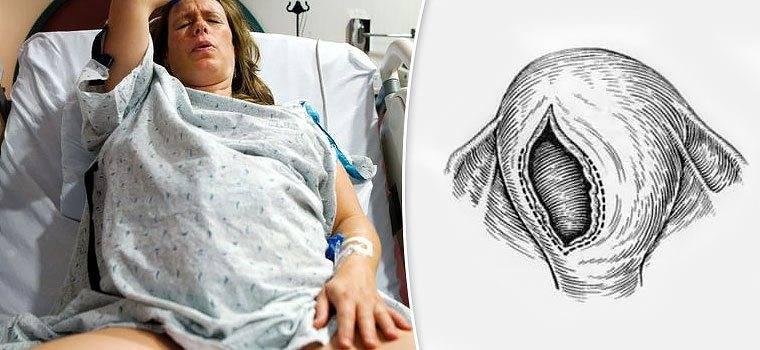 Почему происходит разрыв матки при родах