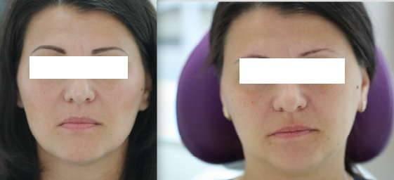 Смещение челюсти и асимметрия лица: как исправить в домашних условиях