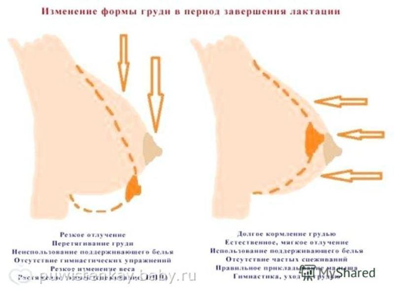 Рост груди и болезненные ощущения в ней на ранних сроках беременности
