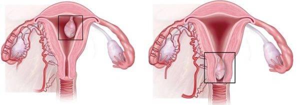 Полипэктомия: показания, типы операций, восстановление и риски