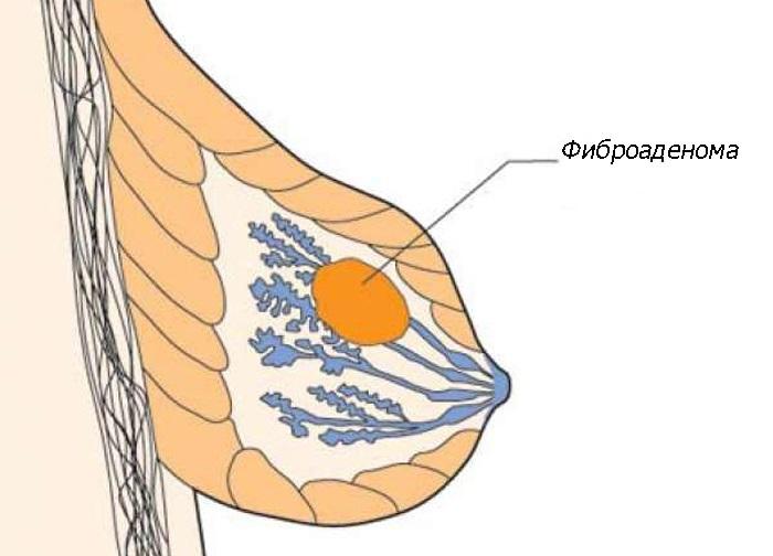 Листовидная фиброаденома молочной железы — причины, диагностика, лечение