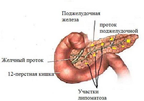 Диффузно-неоднородная структура поджелудочной железы — что это значит?