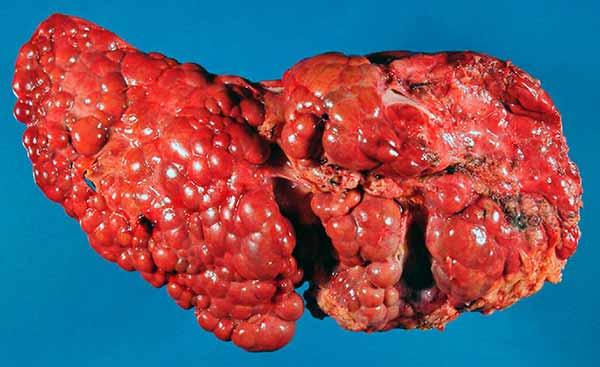 печень после цирроза