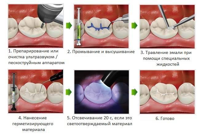 Что такое герметизация или запечатывание фиссур молочных зубов у детей: все за и против процедуры