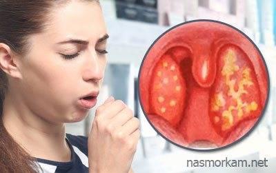 Что делать, если из горла выходят белые комочки с неприятным запахом?