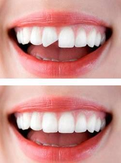 Что делать, если у зуба откололась стенка до уровня десны, можно ли его нарастить?